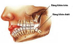 Đi tìm nguyên nhân và cách điều trị đau răng khôn 1