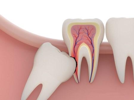 Những triệu chứng mọc răng khôn mà ai cũng cần biết