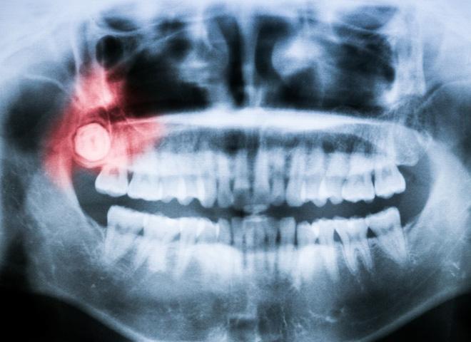 Những triệu chứng mọc răng khôn mà bạn cần biết