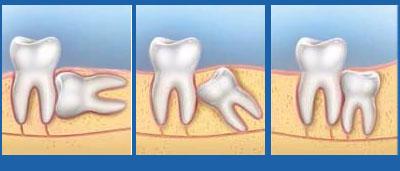 Mọc răng khôn nên ăn gì?